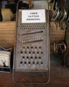 Free-tatto-removal